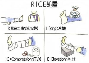 RICE処置